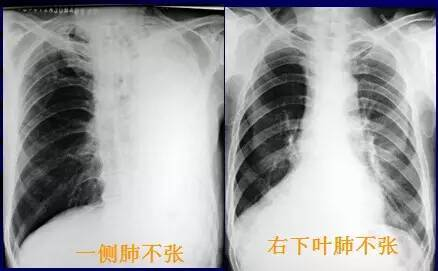 膈肌升高,纵隔向患侧移位.健侧代偿性过度充气.   ②肺叶不张:肺
